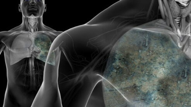 New type of small-cell lung cancer identified by researchers